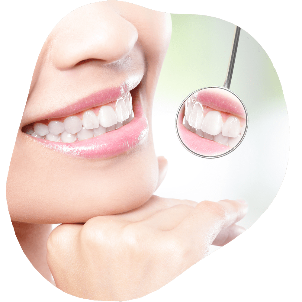 Cleaning and Preventative Care | Toothville Family Dentistry | NW Calgary | General Dentist