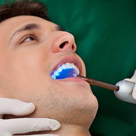 Dental Bonding | Toothville Family Dentistry | NW Calgary | General Dentist