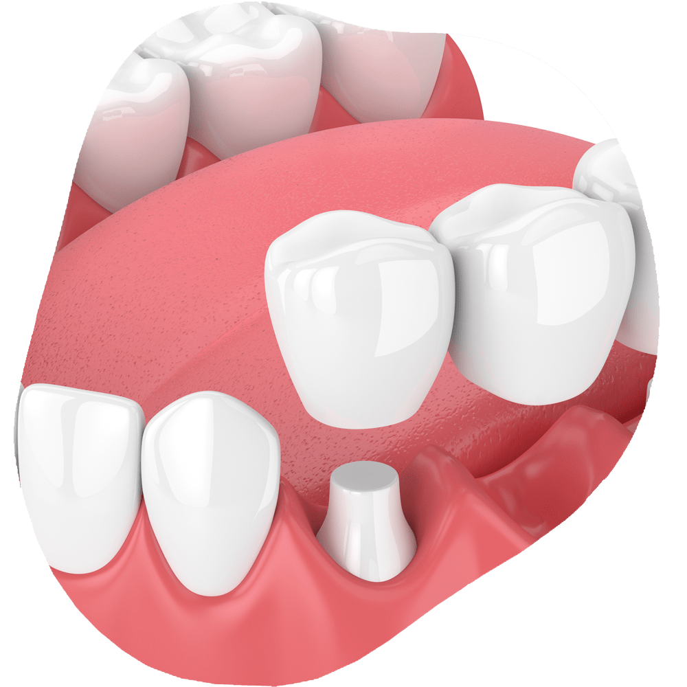 Dental Bridge | Toothville Family Dentistry | NW Calgary | General Dentist