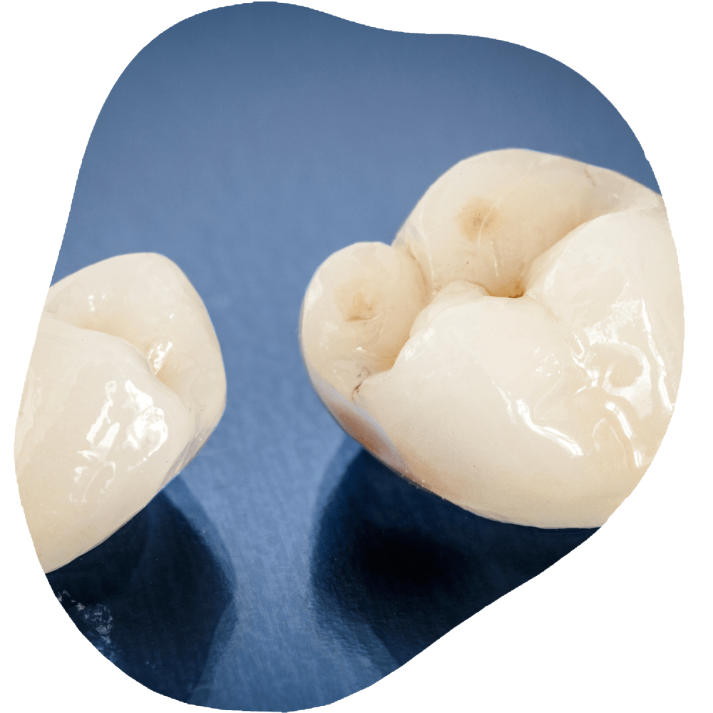 Dental Crown | Toothville Family Dentistry | NW Calgary | General Dentist