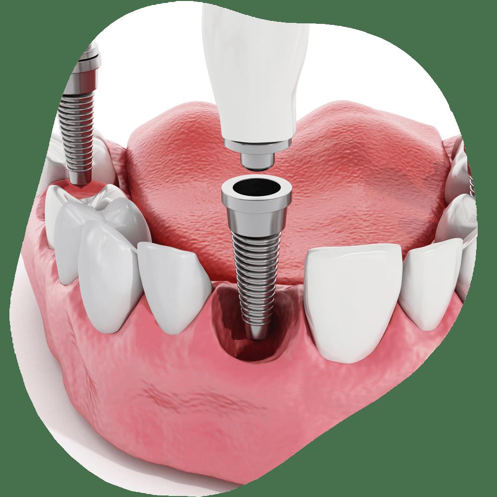 Dental Implants | Toothville Family Dentistry | NW Calgary | General Dentist