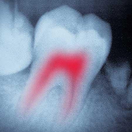 Endodontics | Toothville Family Dentistry | NW Calgary | General Dentist