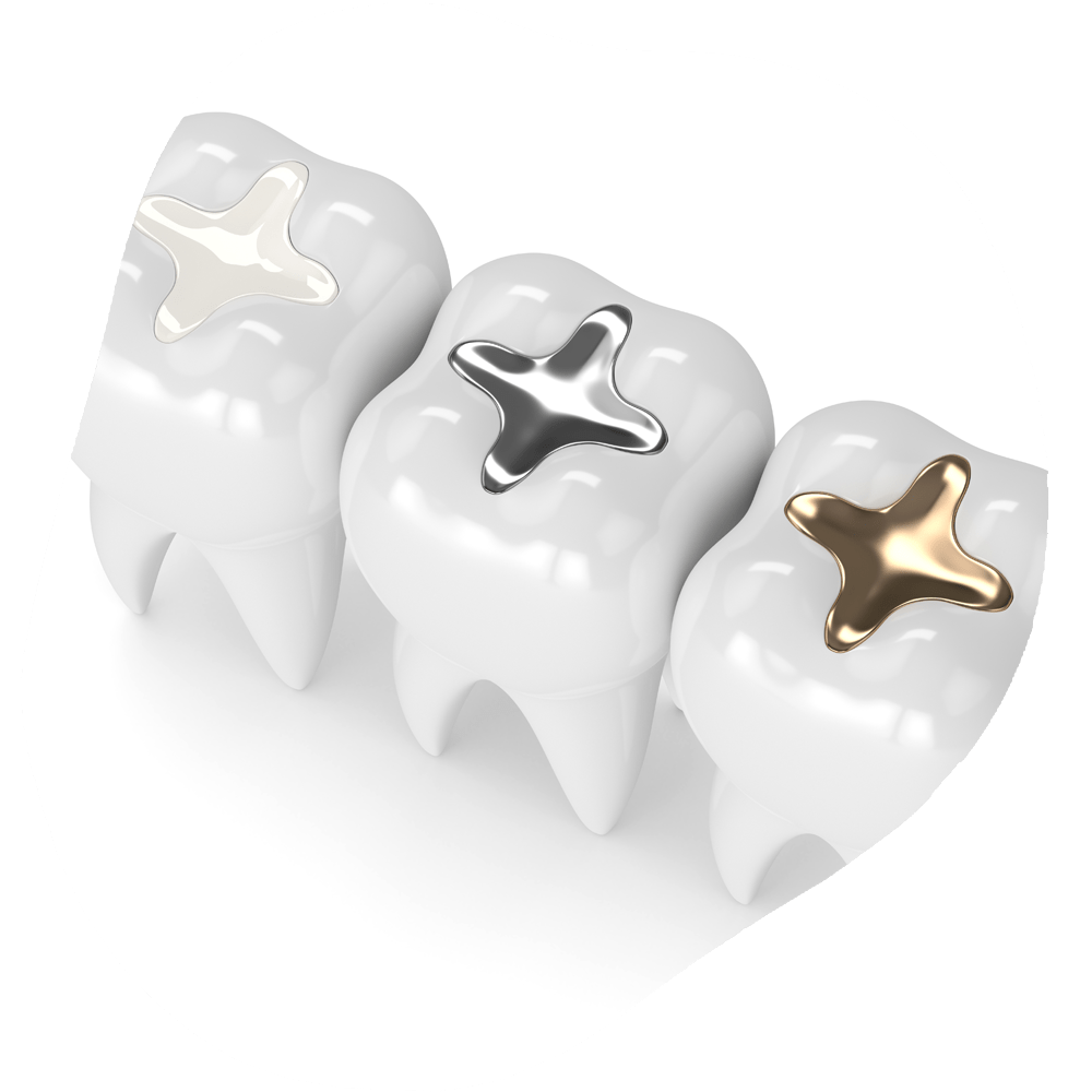 Fillings | Toothville Family Dentistry | NW Calgary | General Dentist