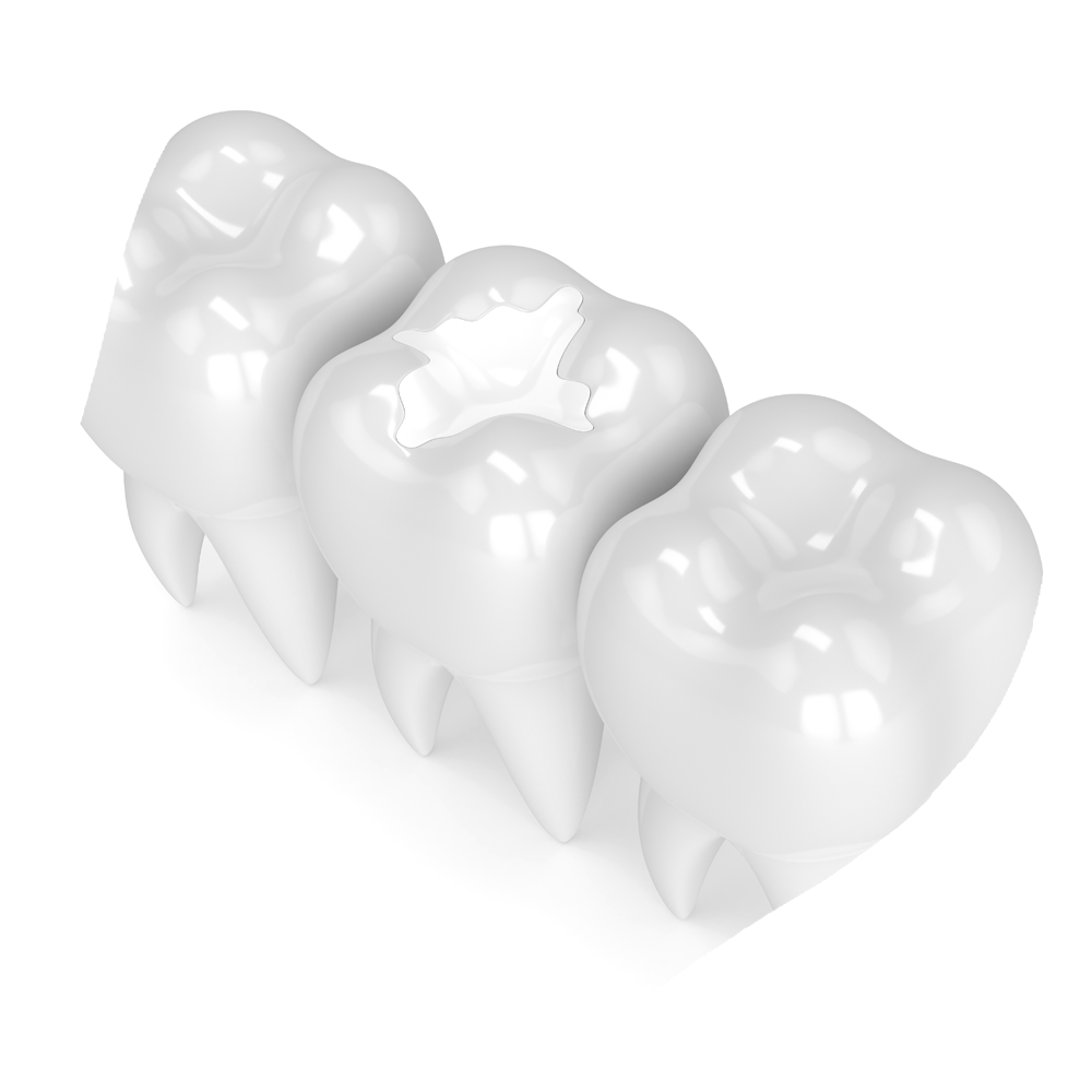 Inlay and Overlay | Toothville Family Dentistry | NW Calgary | General Dentist