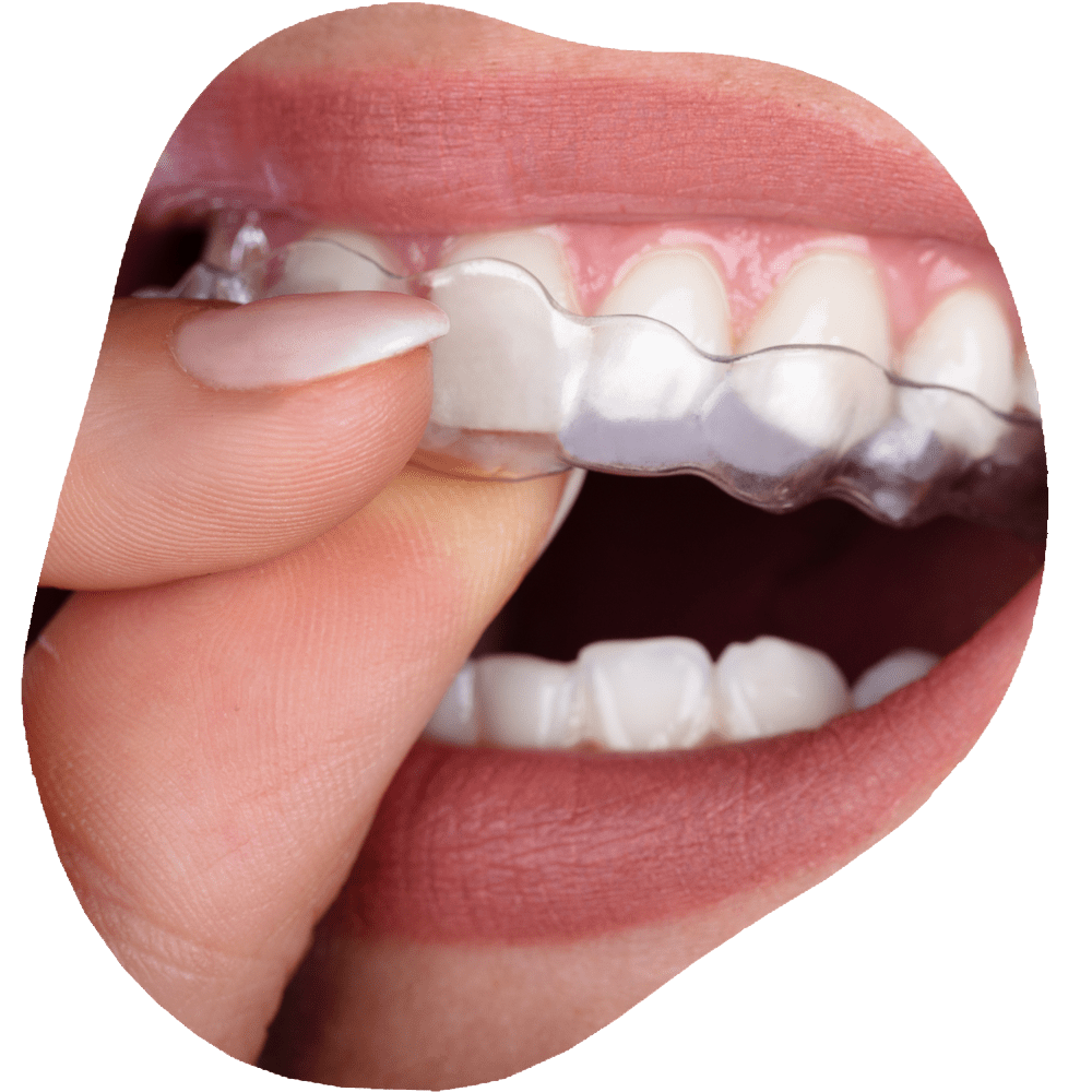 Invisalign Clear Aligners   Toothville Family Dentistry   NW Calgary   General Dentist