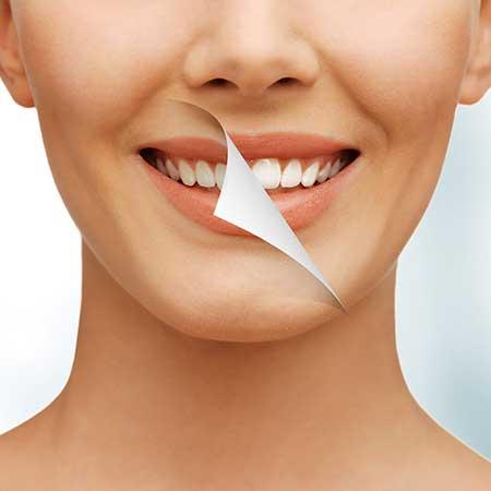 Teeth Whitening | Toothville Family Dentistry | NW Calgary | General Dentist