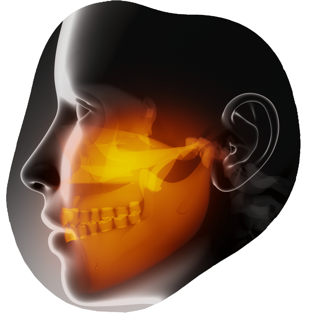 TMJ & Bruxism | Toothville Family Dentistry | NW Calgary | General Dentist