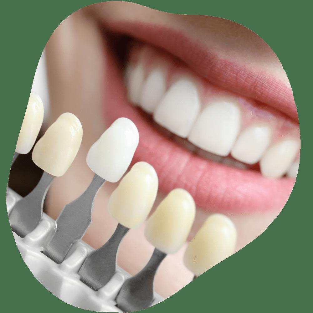 Dental Veneers | Toothville Family Dentistry | NW Calgary | General Dentist